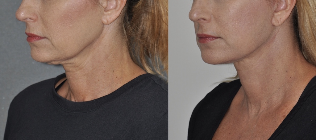 Lower face & neck lift 2