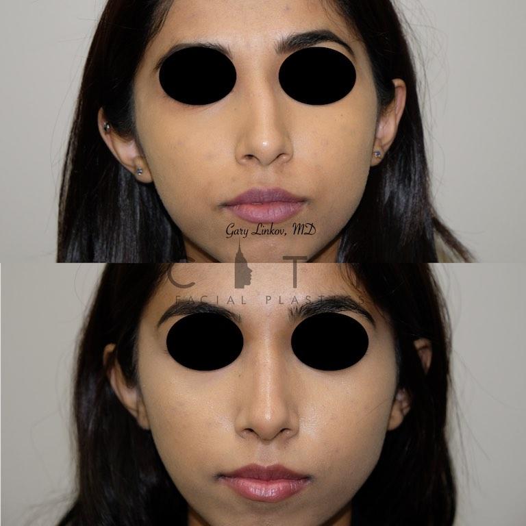 Nasal Surgery 7 frontal
