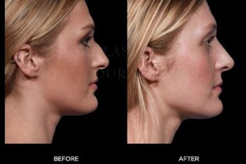 Surgical Nose Job