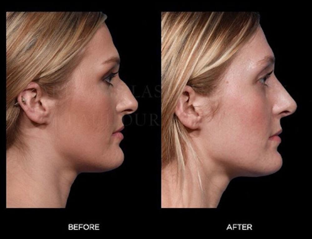 The Modern Nose Job Liquid Rhinoplasty Vs Surgical Rhinoplasty