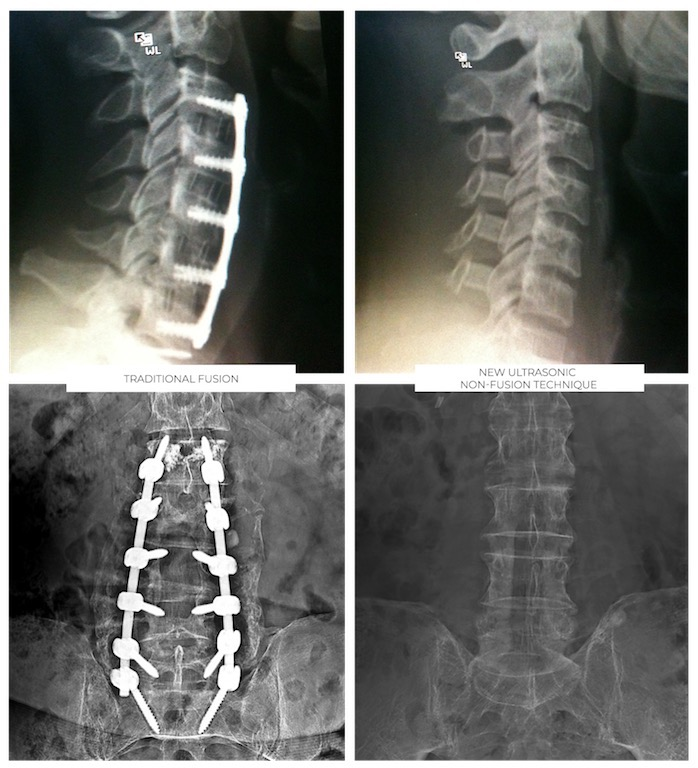 Ultrasonic Spine Surgery
