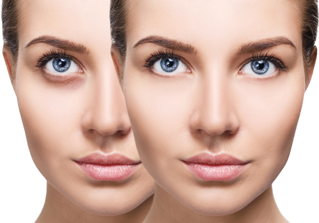 woman with under eye dark circles