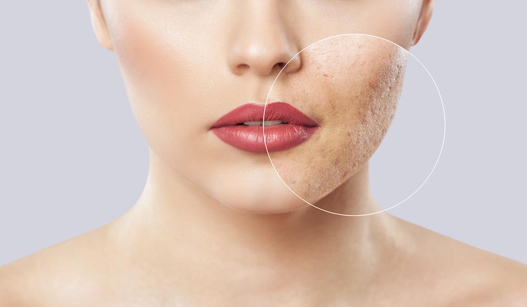 Aerolase The Latest In Laser Skin Rejuvenation