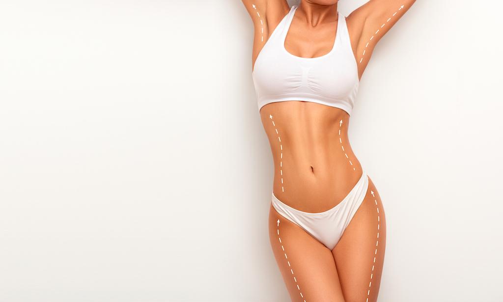 Woman posing for Liposuction