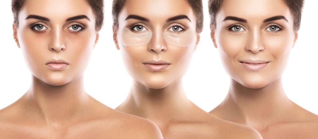 woman woman with under eye dark circles