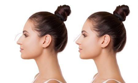 Woman before and after Rhinoplasty