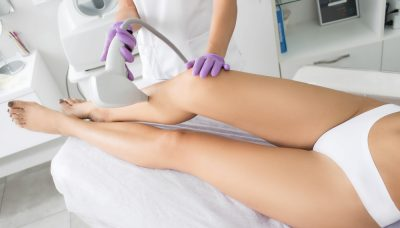 laser hair removal 1