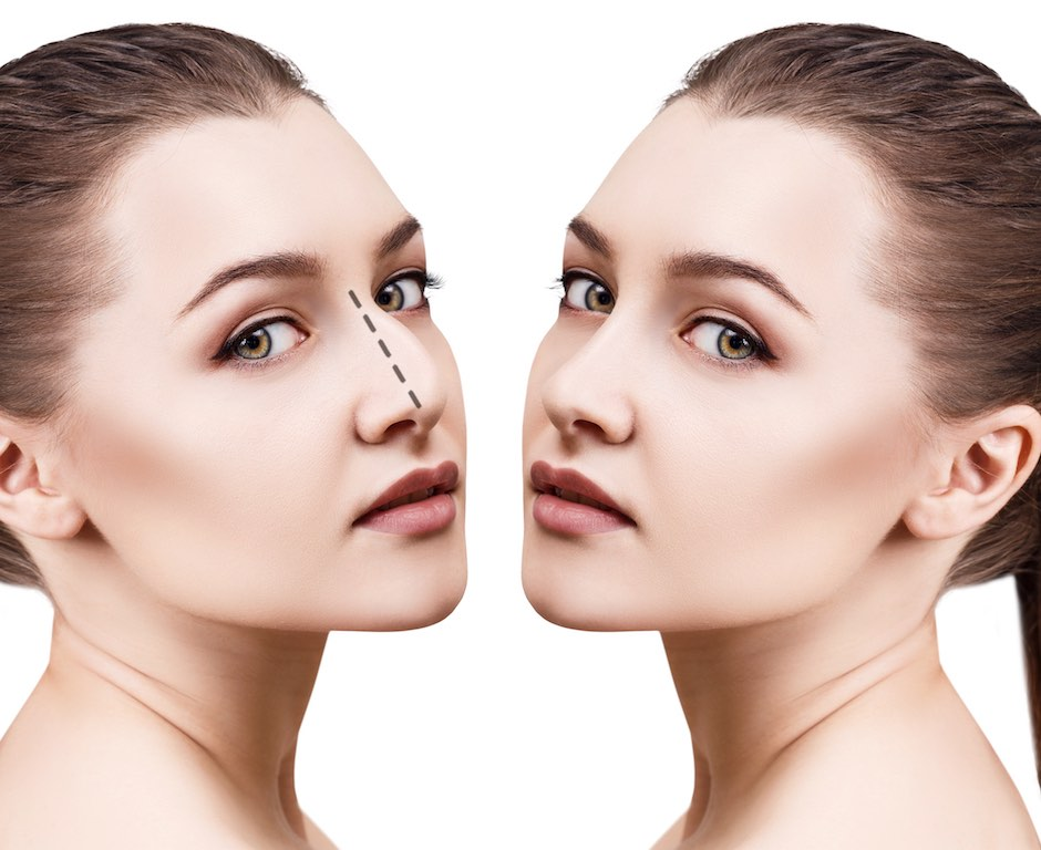 Woman with lines for nose job on her face