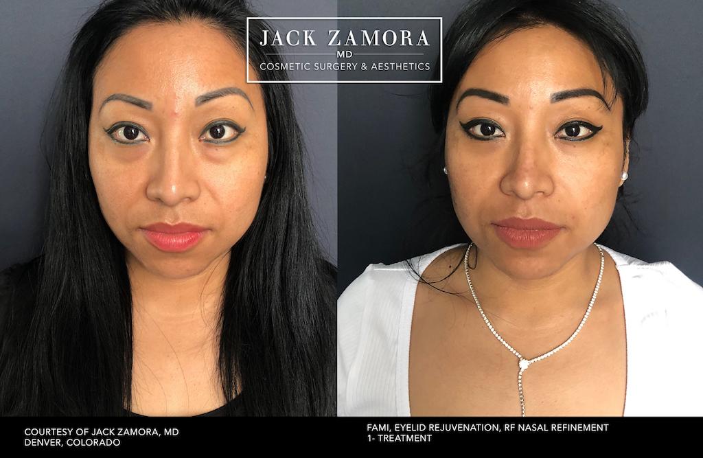 JackZamroaMD-BA-F-Eye-DJZ