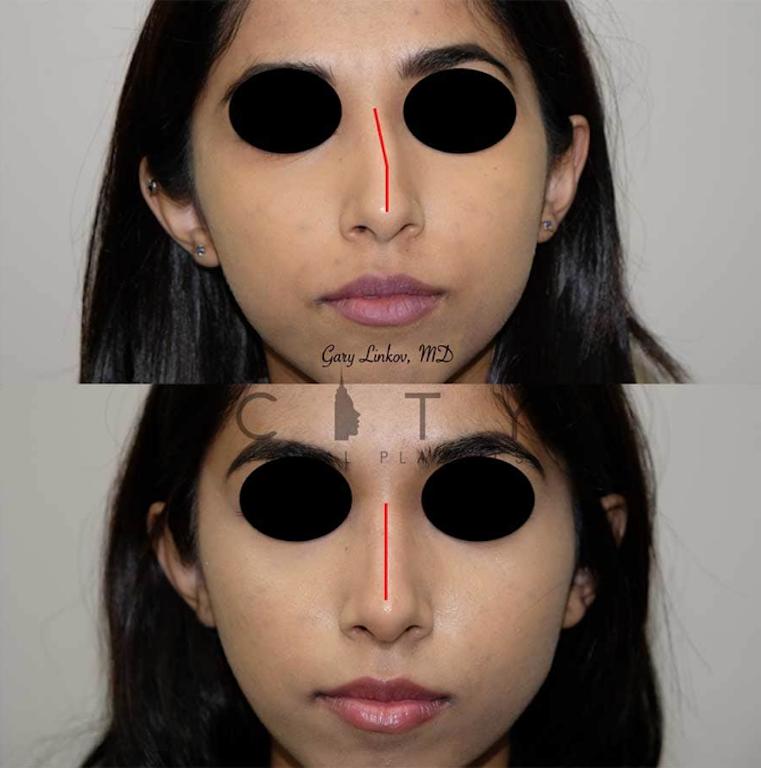 Dr. Linkov Nose Job