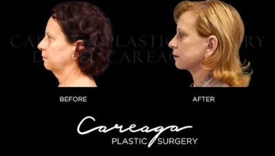 careaga facelift