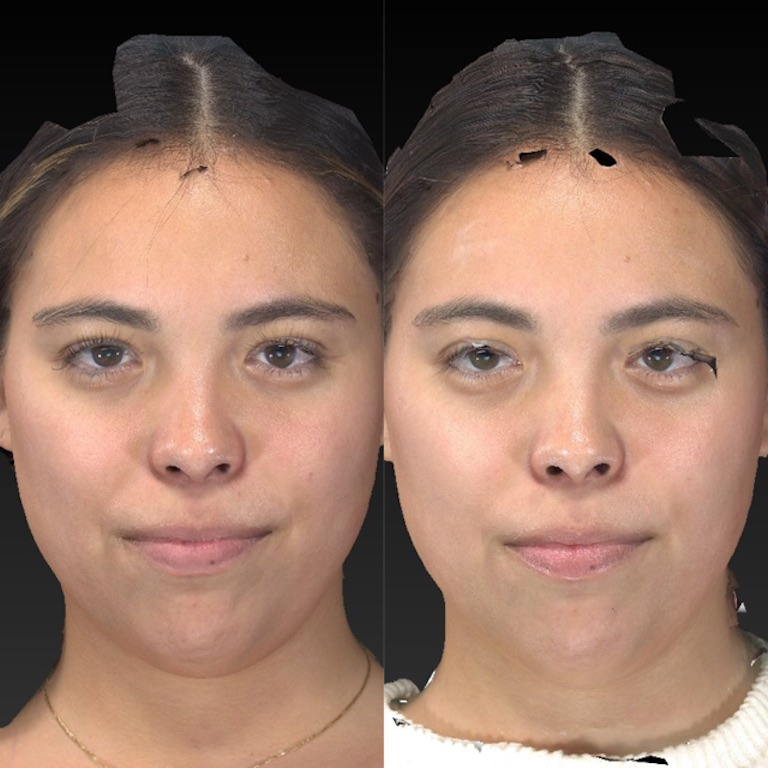 BBL facial before and after