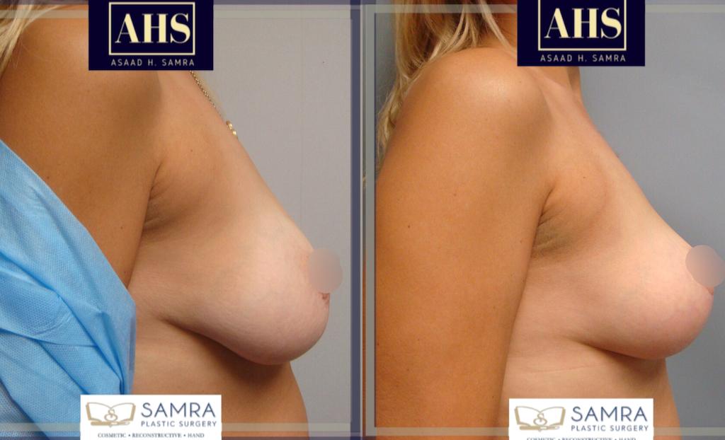 Dr. Samra breast lift 1