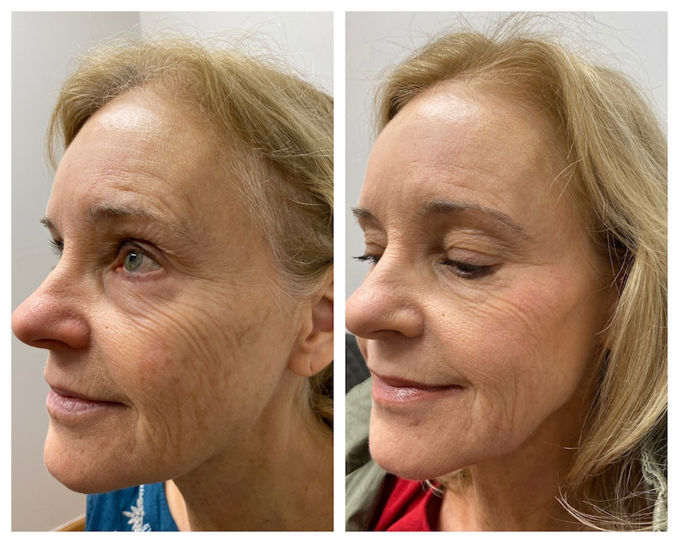 Resurfacing facial