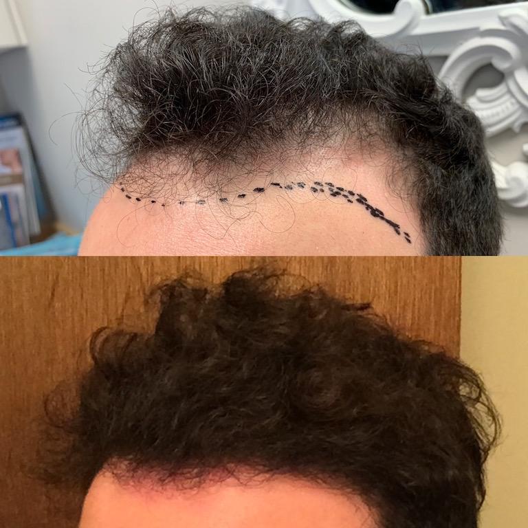 NeoGraft for hair loss