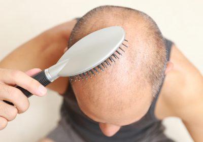 neograft for hairl oss