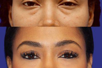 Transconj lower eyelid