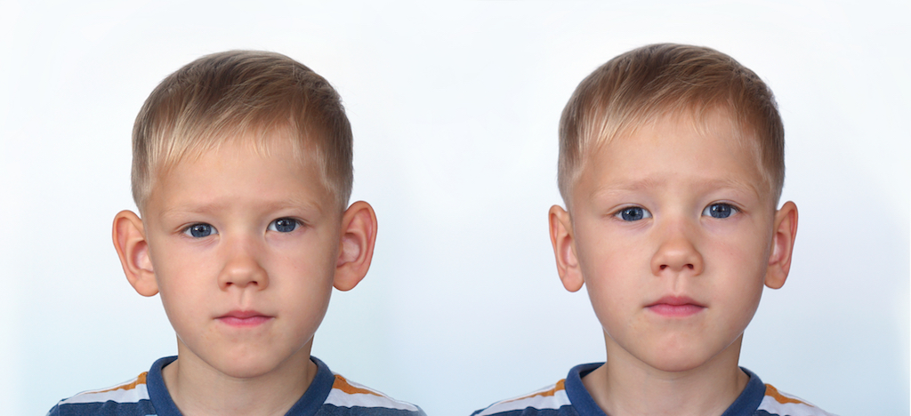 Prominent Ears on Child