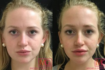 IR-23-botox-and-juvederm-before-after-FRONT-2-MGwatermark