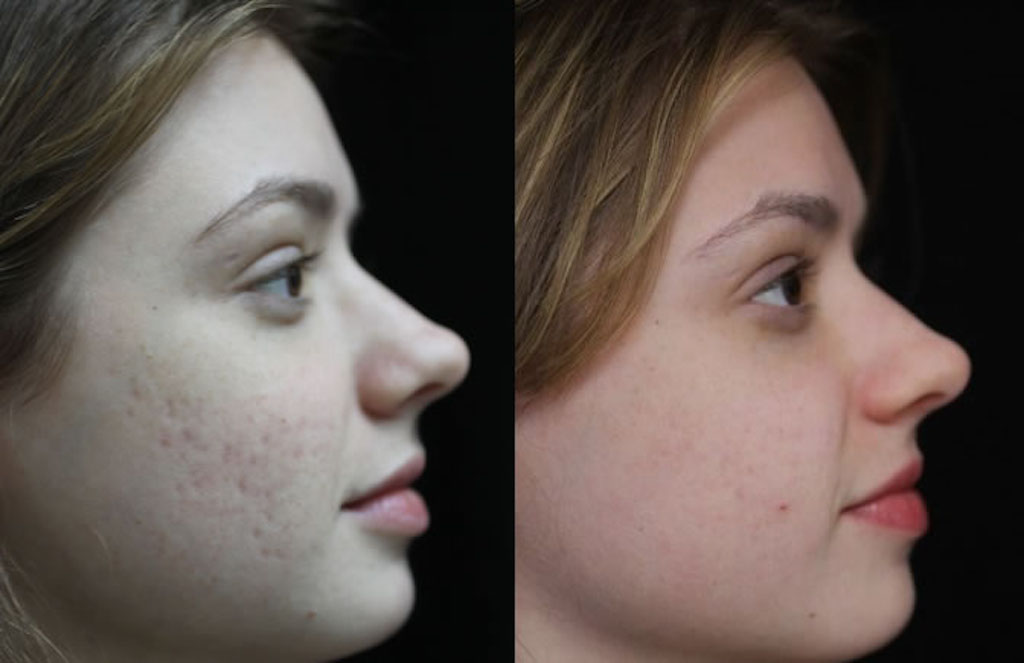 Here S How Nyc Dermatologist Dr Green Tackles Acne Scaring