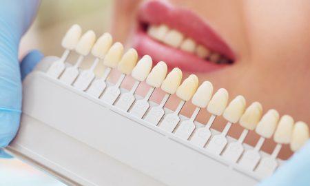Teeth Whitening NYC