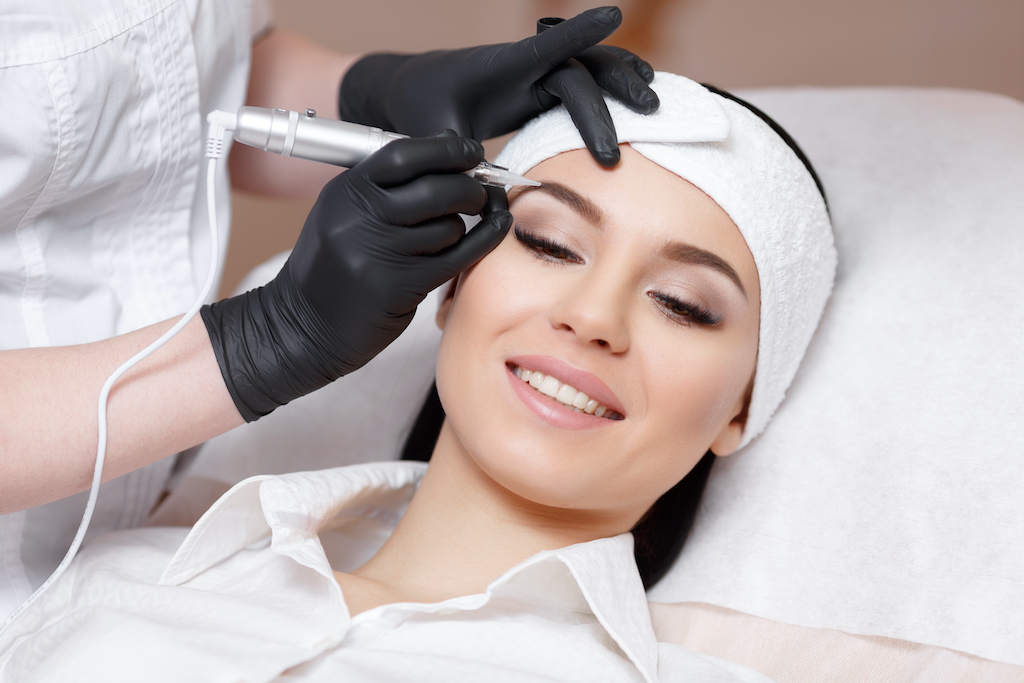 Microblading removal