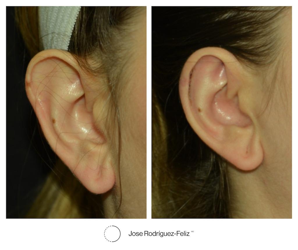 smaller ear surgery