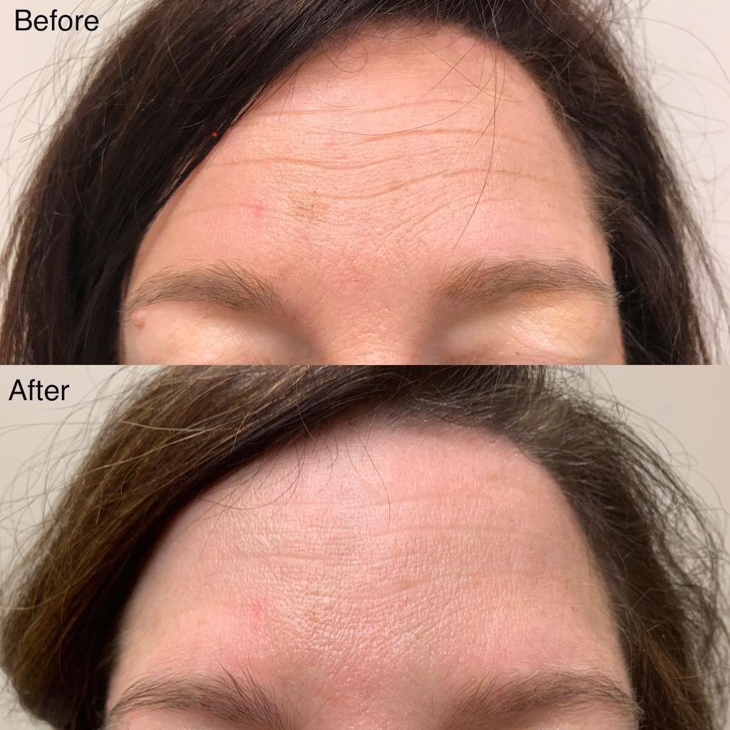 Forehead Dysport (1)