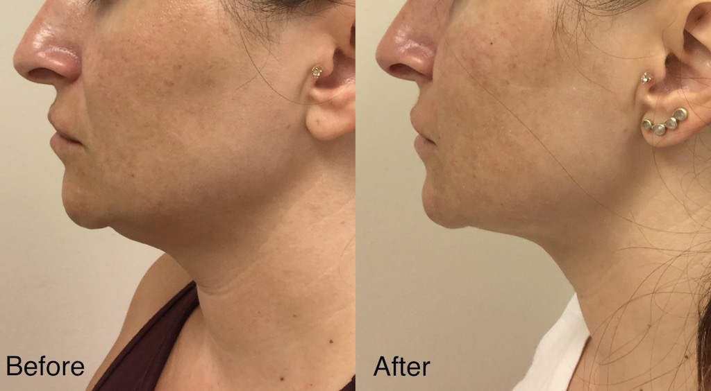 Kybella under chin and jaw (1)