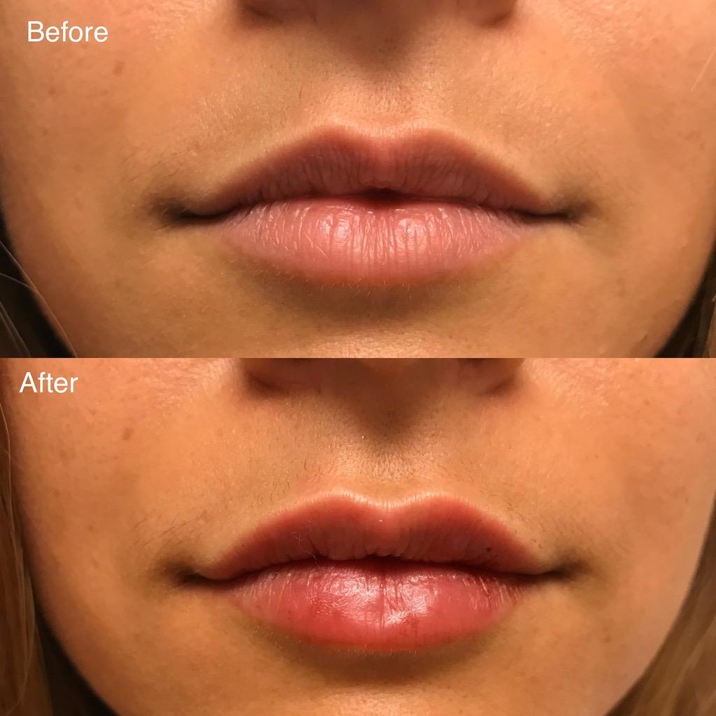 Lip filler (1)