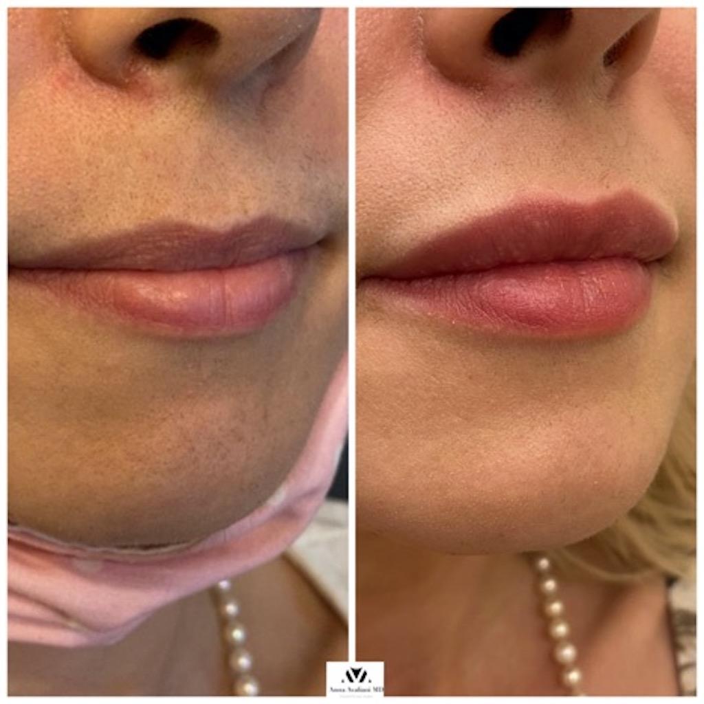 Lollipop Lips With Russian Lip Approach by Dr. Avaliani, dermalfillerbeforeandafter