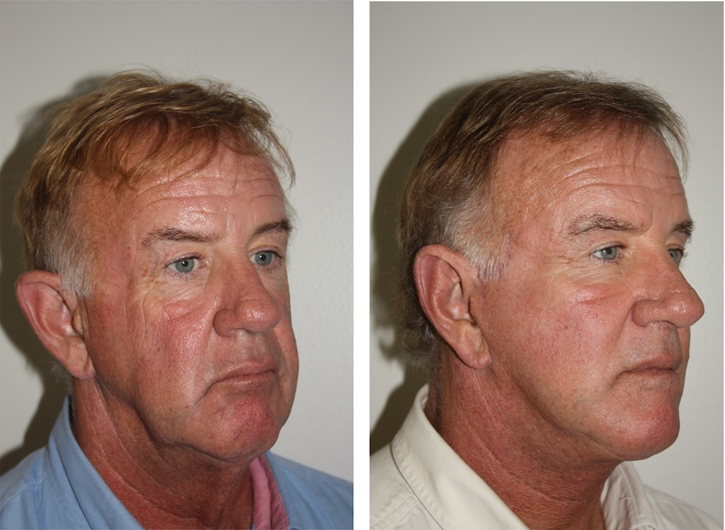 Orange County Male Facelift
