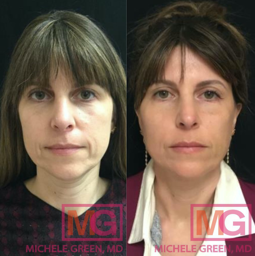 The Low Down On Fillers In accordance To Dr. Inexperienced, dermalfillerbeforeandafter