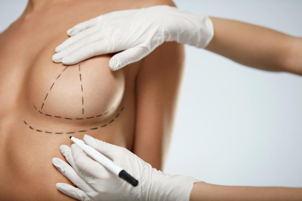 Breast Implants Boston