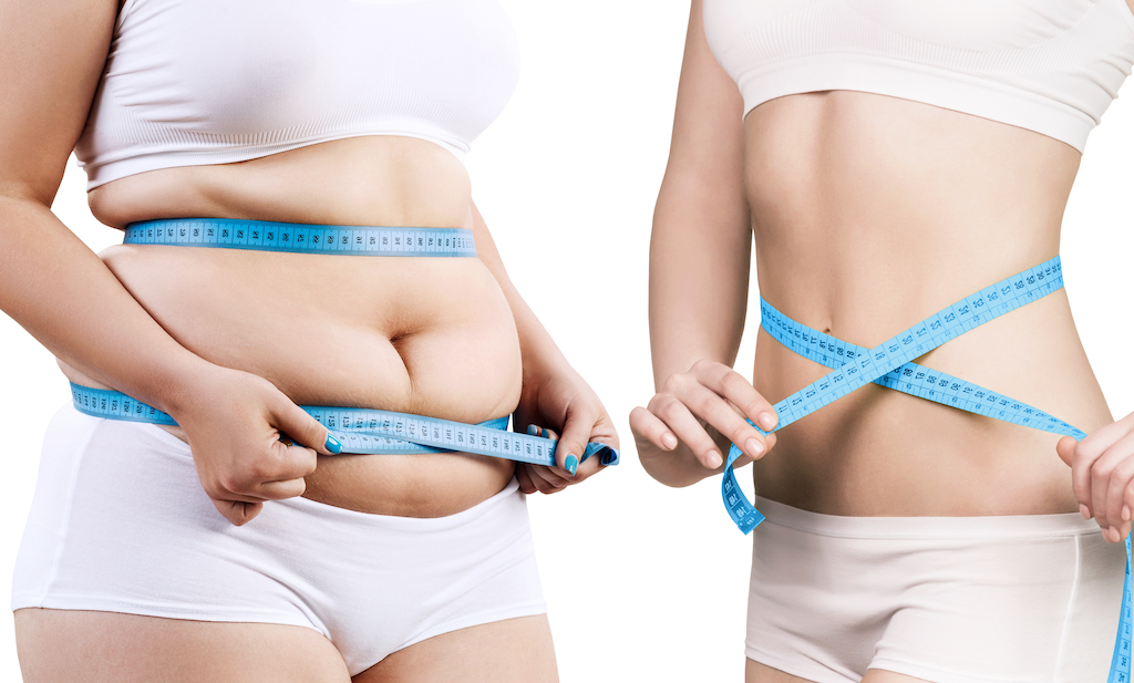 Minimally Invasive Weight Loss LA