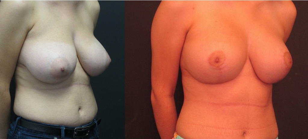 Breast implants Miami