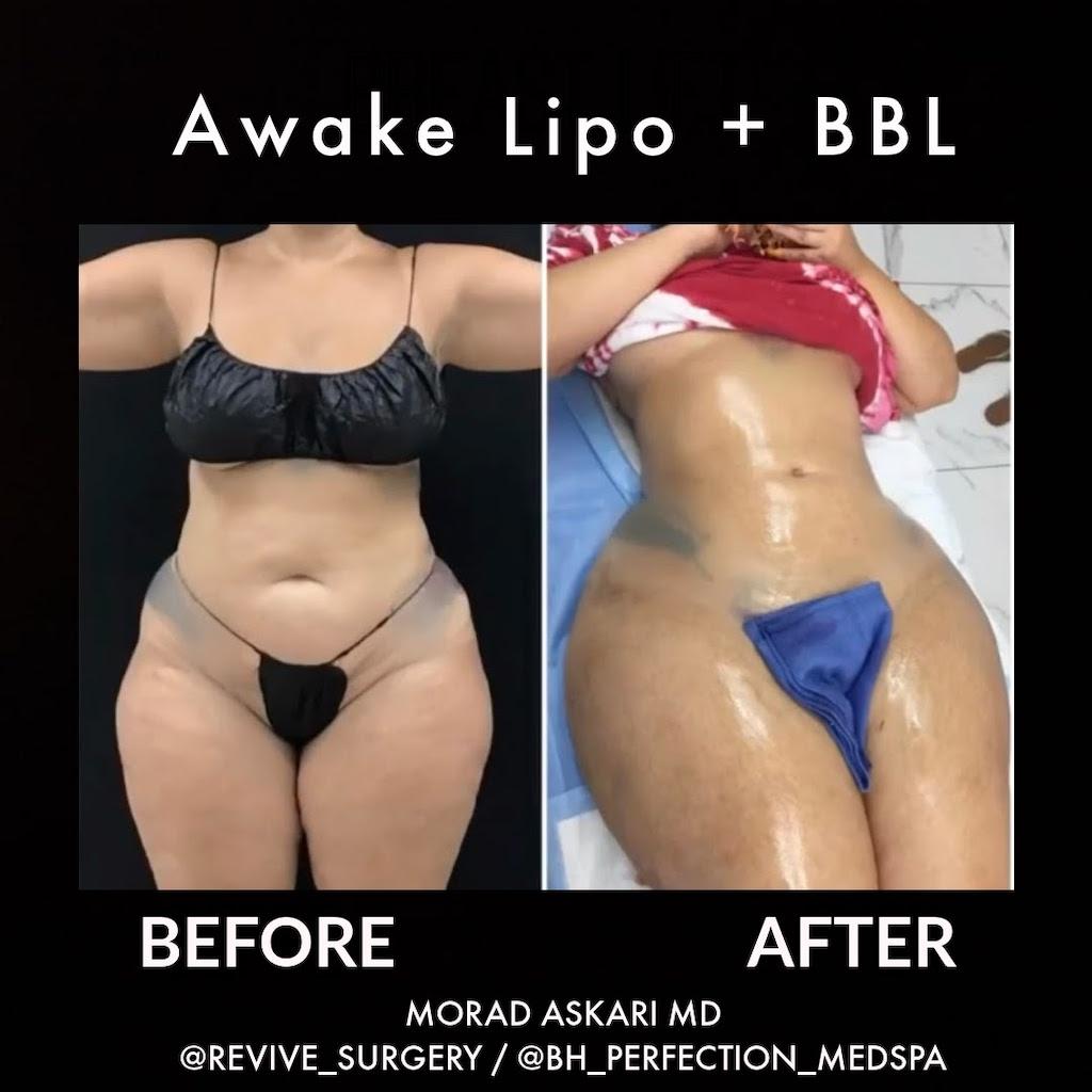 LIPO + bbL