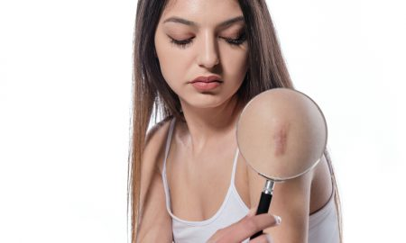 scar treatment Miami