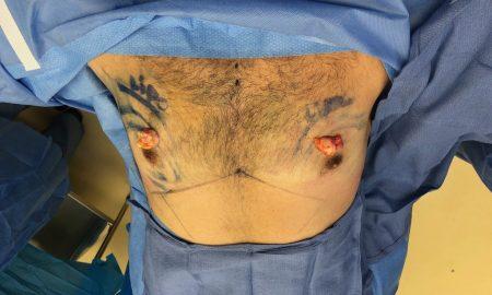 gynecomastia Dr. Karan Chopra