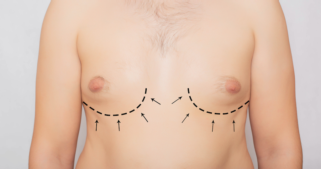 Gynecomastia Treatment Boston