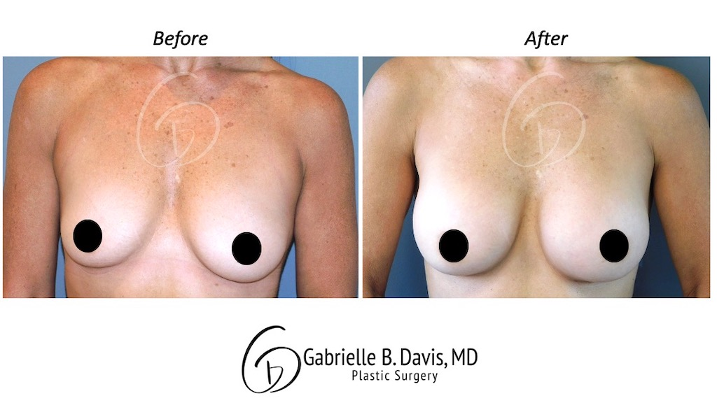 Slide1- Breast Augmentation