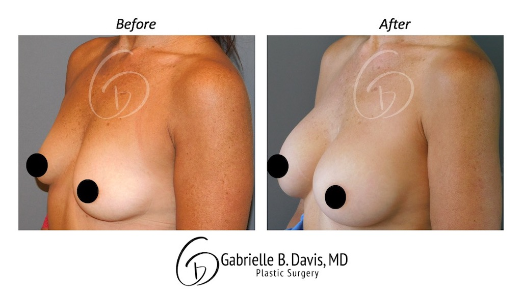 Slide2- Breast Augmentation