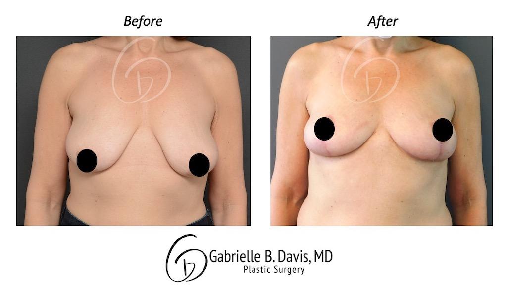 Slide3- Breast Lift