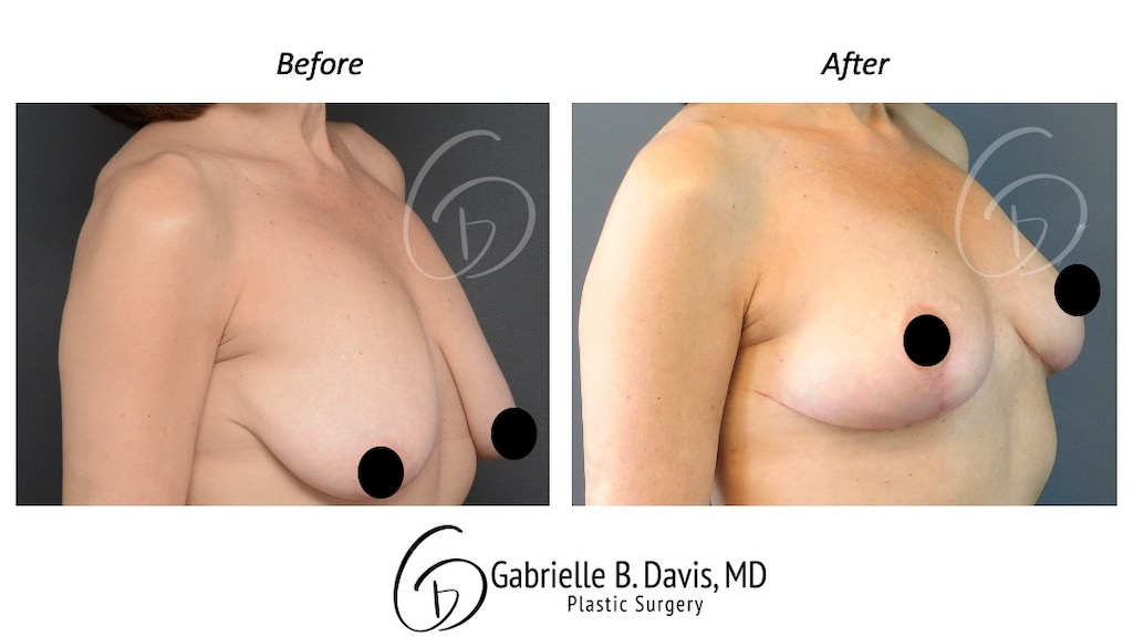 Slide4- Breast Lift