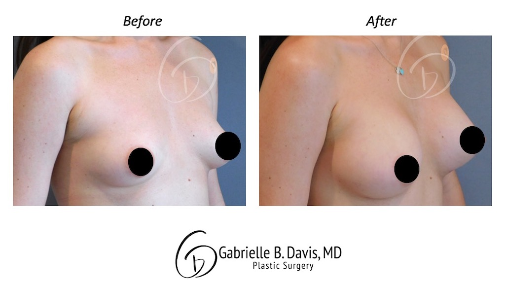 Slide6- Breast Augmentation