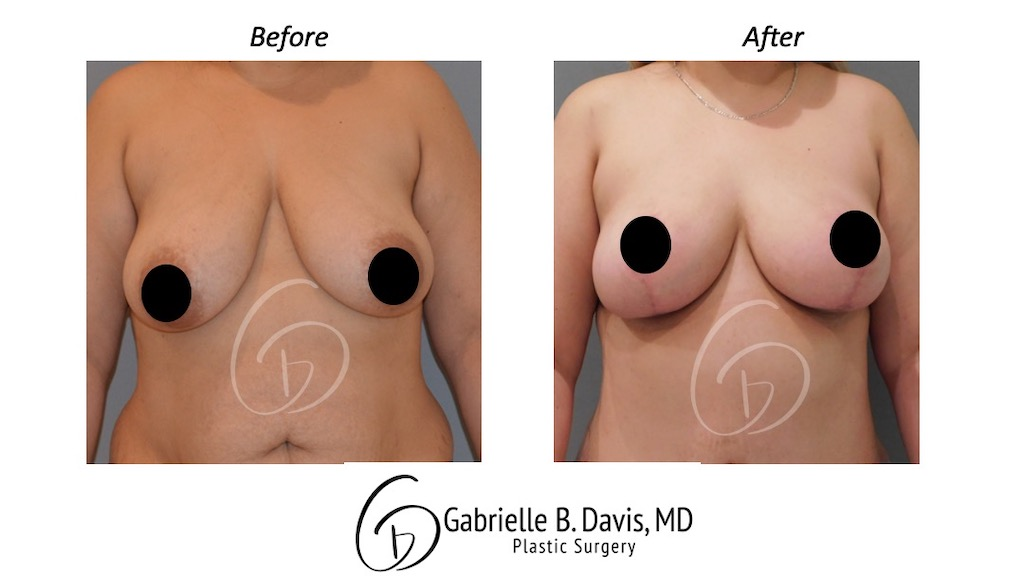 Slide7- Breast Reduction