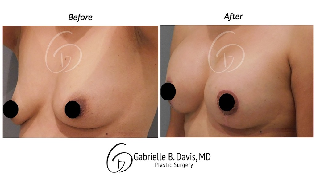 Slide8- Breast Lift with Implant