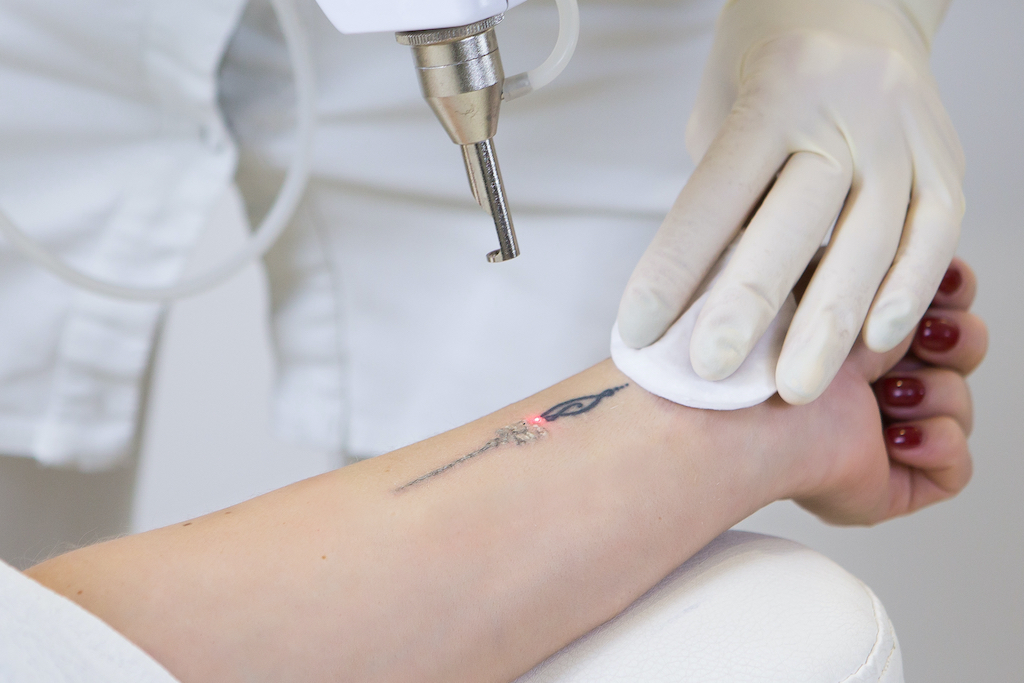 Gone Without A Trace Your Best Options For Tattoo Removal