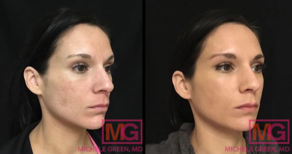 This is How Dermal Fillers Can Get Rid Of Your Zits Scars, dermalfillerbeforeandafter