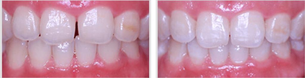 Luxury Dentistry